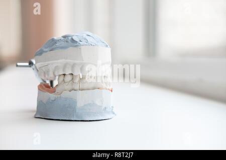 Plâtre de mâchoires. Modèle gypse dentaire mâchoires humaines en laboratoire de prothèse. La médecine dentaire, l'orthodontie. Close up. Banque D'Images