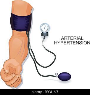 Vector illustration de l'hypertension artérielle. La pression artérielle Banque D'Images