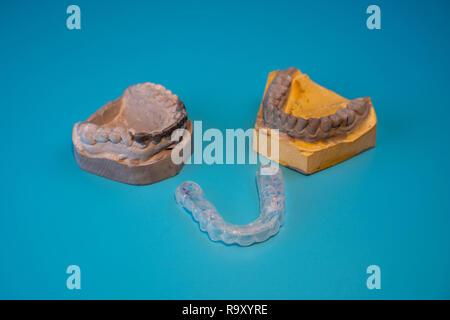 Moules de la mâchoire. dental splint. Les implants dentaires sur fond bleu Banque D'Images