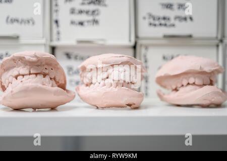 Moulage dentaire modèle en plâtre de gypse l'orenb mentions légales jaws, laboratoire photos technique Banque D'Images