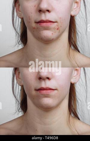 Jeune femme avant et après traitement de l'acné, libre. Concept de soins de la peau Banque D'Images