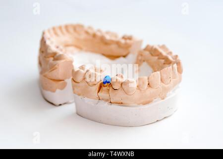 Plâtre de mâchoires. Modèle gypse dentaire mâchoires humaines en laboratoire de prothèse. La médecine dentaire, l'orthodontie. Close up. selective focus Banque D'Images