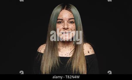 Close up of young woman looking at camera isolé sur fond noir. Femme souriante avec des taches de rousseur ou taupe sur son corps.