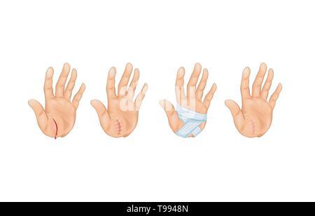 Vector illustration d'une coupe sur le palm Banque D'Images
