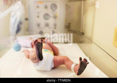 Newborn baby boy avec pieds en désordre à l'hôpital couché