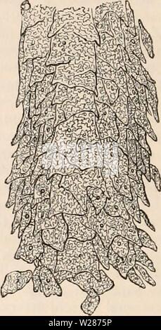 Image d'archive à partir de la page 375 de la cyclopaedia de l'anatomie et. La cyclopaedia de l'anatomie et physiologie0402cyclopdiaofana todd Année: 1849 R une partie de l'hypertrophie de la papille, montrant ainsi l'imbrication des retrorse son épithélium. Blag. 200 diamètres. larged et rouge. Dans les premiers stades de la fièvre ce changement est caché par la fourrure (qui est une condition d'opaque et détrempés épithélium), en ce qui concerne les papilles filiformes-, -en fourrure, dans tous les cas, je crois, limitées à ces et la papille? Conicas. Pas si les papilles fongiformes? ; Pour ces sont exagérées et rouge vif. Le résultat est Banque D'Images