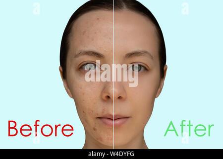 Visage d'une jeune fille après une intervention cosmétique de peeling chimique close-up. Le concept avant et après. Banque D'Images
