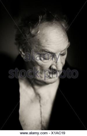 Vieil homme avec la chirurgie cardiaque cicatrice. Banque D'Images