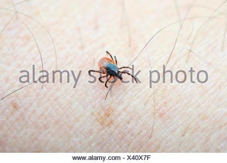 Tique  ricin(Ixodes ricinus) ramper sur la peau humaine Banque D'Images