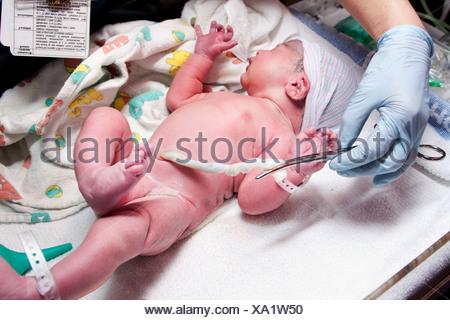 Nouveau-né cute infant baby with hand holding collier sur cordon ombilical à une pépinière de l'hôpital. Banque D'Images