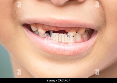 Baby denti sono appena sceso in bocca. Foto Stock