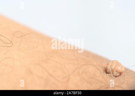 Massa peduncolato pelle tag o acrochondon o soft fibroma. Papilloma bump sul corpo maschio macro shot sulla coscia