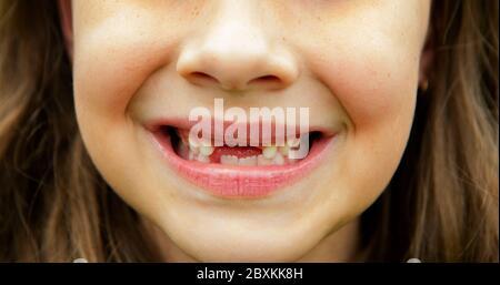 Ragazza sorridente con denti anteriori mancanti Foto Stock