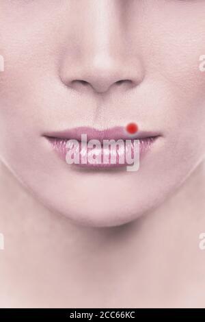 Cold mal blister rosso pimple sulle labbra superiori della donna con herpes. Illustrazione del progetto per il concetto