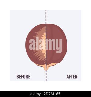 Donna prima e dopo un trapianto di capelli, illustrazione concettuale.