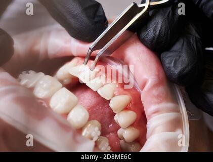Primo piano di una mano ortodontista in un guanto nero che mette le parentesi graffe sui denti della giovane donna. Paziente con divaricatore guancia in bocca e staffe ortodontiche sui denti che visitano la clinica dentale. Concetto di odontoiatria.