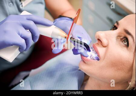 Primo piano di mani ortodontiche utilizzando un dispositivo a luce ultravioletta dentale durante l'esecuzione di procedure dentali in clinica. Donna con bretelle metalliche cablate sui denti che ricevono un trattamento dentale. Concetto di odontoiatria