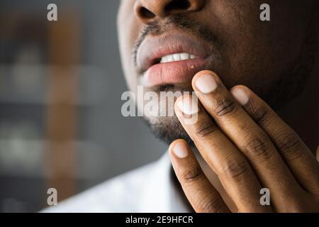 African American bocca labbro pelle trattamento Herpes