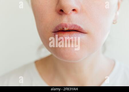 Primo piano delle labbra della ragazza affette da herpes. Trattamento di infezione da herpes e virus. Parte di giovane donna viso, labbra con herpes colpito. Bellezza