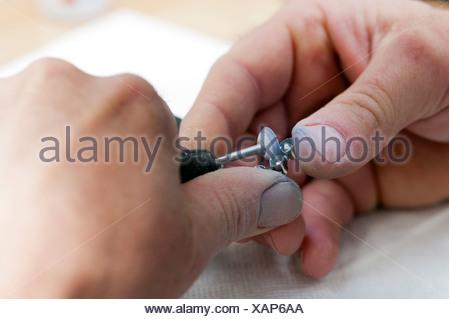 Le mani di un odontotecnico con una smerigliatrice e corone in metallo Foto Stock