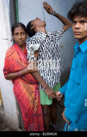 Trattamento dignitoso degli handicappati rimane sconosciuto nella società indiana, un ragazzo disabile è guidato Foto Stock