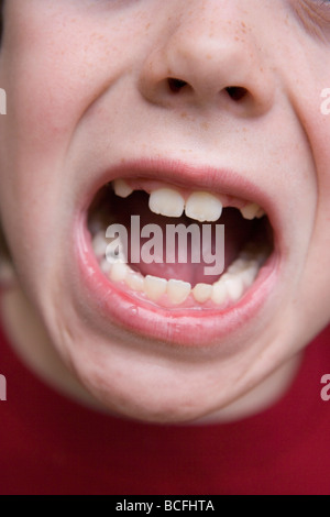 Chiusura del bambino di 7 anni la bocca con denti mancanti Foto Stock