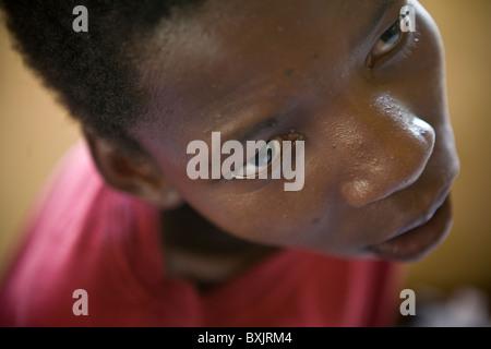 Ritratto di un bambino disabile - Tanzania Africa Orientale. Foto Stock