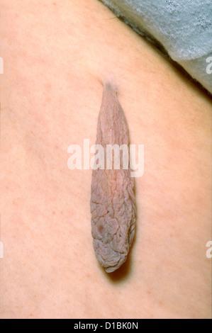 TAG di pelle sulla coscia