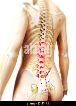 Dolore alla schiena, opere d'arte concettuale Foto Stock