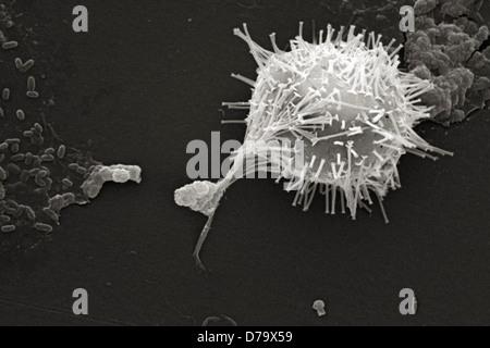 Scanning Electron microfotografia acqua non trattata campione