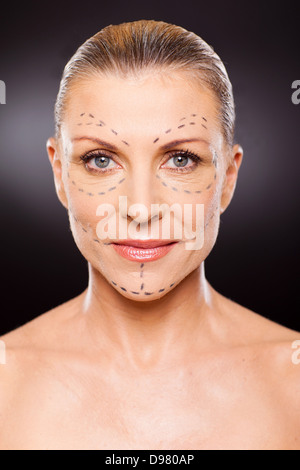 Ritratto di donna senior prima di un intervento di chirurgia plastica close up Foto Stock