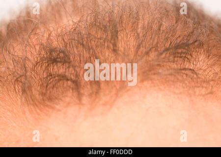 ... L uomo controlla la perdita di capelli alopecia stress il trattamento  del cancro Foto Stock d498a71eb495