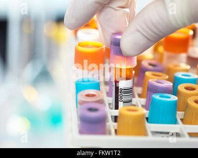 Tecnico di laboratorio di preparazione di campioni di sangue per il test medici in laboratorio