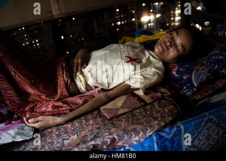 Suor Maria - 30/03/2013 - Birmania - Douci è un paziente infettato dal virus HIV. Ella è stata contaminata da sua Foto Stock