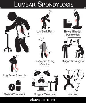 Spondilosi lombare sintomi pittogramma ( mal di schiena..