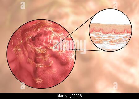 Esofago parete. Micrografia di luce di una sezione attraverso l'esofago umano che passa il cibo dalla bocca allo stomaco. L'esofago lumen (bianco, in alto) è rivestita da uno spesso strato di epitelio squamoso stratificato (rosso) che protegge il tessuto sottostante. Al di sotto di questo è uno strato di supporto di tessuto connettivo, la lamina propria, che contiene i vasi sanguigni ed è ricca di fibre di elastina.