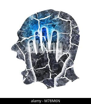 La follia, cefalea, emicrania, depressione. Silhouette maschio con testa incrinata che simbolizza la follia, depressione, Foto Stock