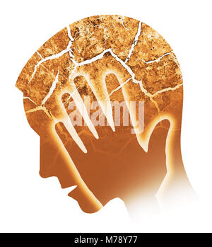 Mal di testa, emicrania, depressione. Silhouette maschio con testa incrinata che simbolizza la follia, depressione, Foto Stock