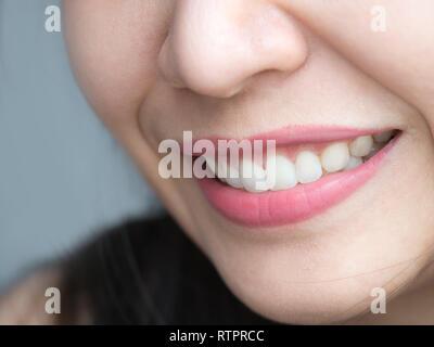 Closeup colpo di asiatico tailandese cinese donna femmina faccia per il trucco. Donna con Red Lips rossetto e sano dental white grandi denti perfetti. Dental Foto Stock