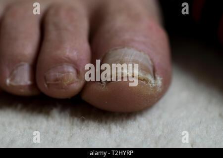 Alluce con unghia danni. Anziani mans piedi close up con unghia trauma. Piedi in prossimità di cure mediche concetto. Foto Stock