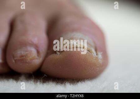 Piedi close up con toenail danni su alluce di un uomo più anziano. Trattamento medico per piede batterica fungo e letto ungueale trauma. Foto Stock