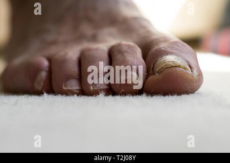 Chiusura del vecchio mans piedi. Danneggiato toenails close up. Infezioni fungine e scheggiati toenails close up. Foto Stock