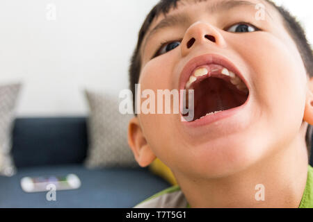 Giovani asiatici/caucasico etnia miste boy apre la sua bocca con mancante dente anteriore close up Cure dentarie immagine. Foto Stock