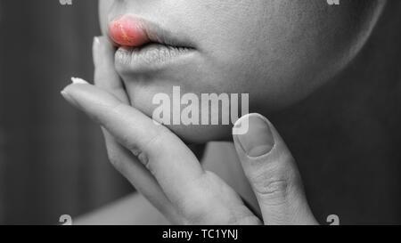 Donna applicazione di unguento sul suo labbro superiore con Herpes. Il trattamento di sintomi di Herpes. Nero e Sfondo bianco con infiammazione rosso sulla pelle