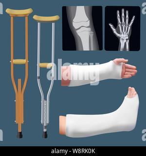 Set di traumatologia medicina oggetti. Il trattamento della frattura di un osso. Stecca di gesso, stampella, raggi x. Oggetti isolati. Vettore Foto Stock
