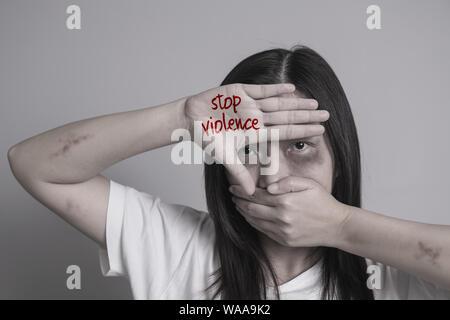 Stop alla violenza contro le donne campagna. Asia donna con livido sulle braccia e viso usare una mano vicino la bocca e l'altro lato scrivi la parola stop alla violenza