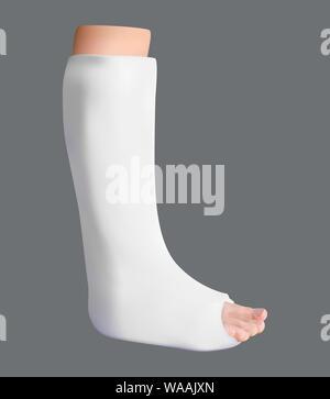 Gamba intonacata. Il trattamento di una gamba rotta. Medicina e salute. Oggetto isolato. Vettore Foto Stock