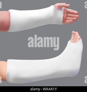 Intonacata la gamba e il braccio. Il trattamento di una gamba rotta e braccio rotto. Medicina e salute. Isolato oggetto realistico. Vettore Foto Stock